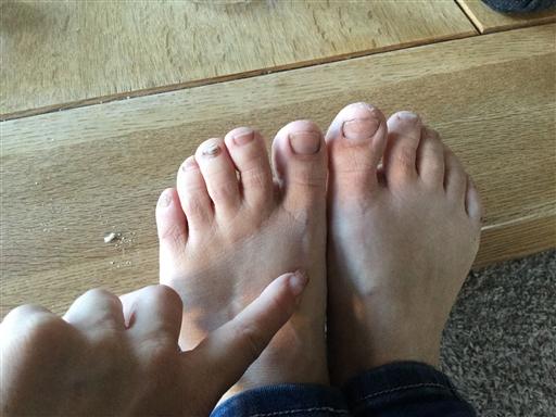 svullnad ovansida fot