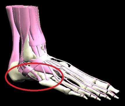 ont i foten efter löpning