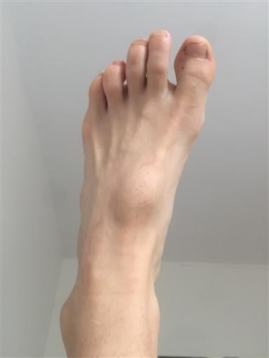knöl under foten trampdynan