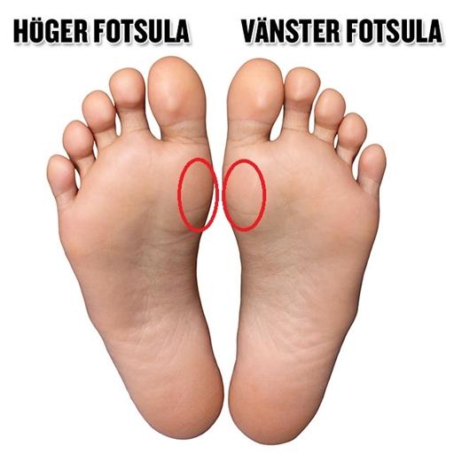 blodblåsor på foten