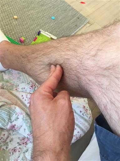 ont i båda benen