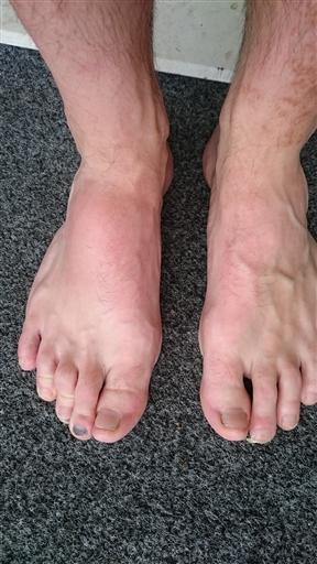 ont i vänster fot