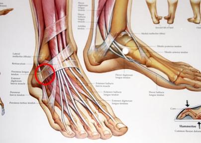 ont i smalbenet och foten