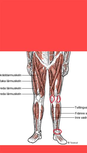ont i fotleden vid löpning