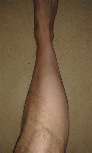tappar hår på benen