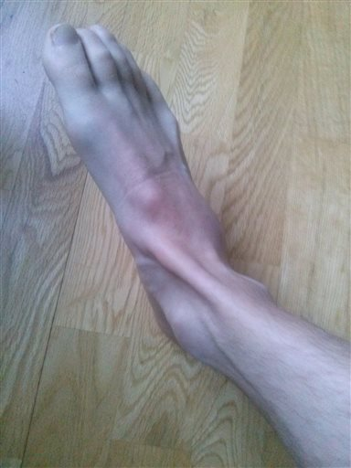 ont ovanpå foten