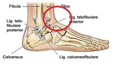 ont i foten på ovansidan